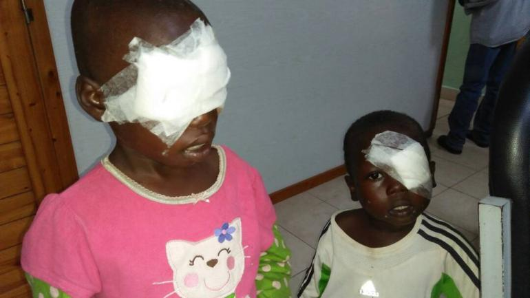 Aimable and Nelly with bandages over their eyes